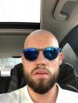 Bart übergang glatze 5 Gründe